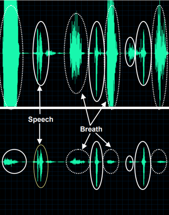 Speech input to Honeywell Voice software without windscreen (top) contrasted with windscreen used (bottom). Note breath noises and plosives (dashed lines) significantly reduced.